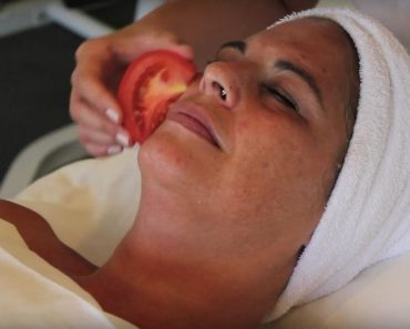 OMG! Rubbing a slice of tomato on face can give this amazing result