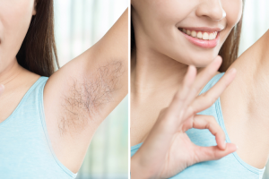 Give a try to this amazing underarm or armpit hair removal natural trick