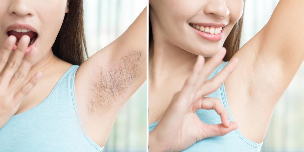 underarm or armpit hair removal naturally