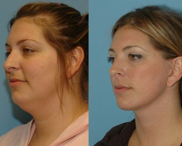 Multiple Ways On How To Lose Face Fat?